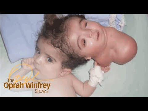 The 2-Headed Baby Miracle | The Oprah Winfrey Show | Oprah Winfrey Network