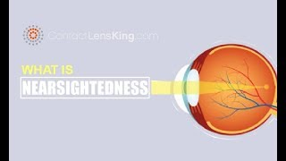 What is Nearsightedness? What Causes Myopia?