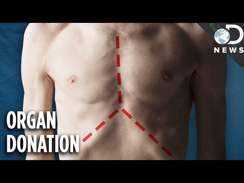 What Actually Happens To Your Body When You Donate Your Organs?