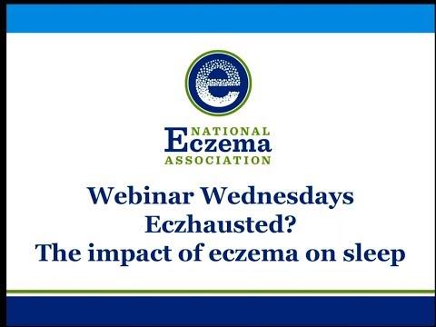 Eczhausted? The impact of eczema on sleep
