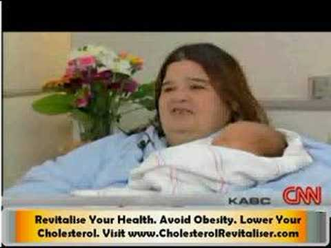Obesity Dangers - The Woman Who Didn't Know She Was Pregnant