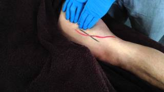 Dry Needling: Adductor Magnus