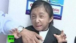 New World's Shortest Man: Nepal teen breaks record on 18th birthday