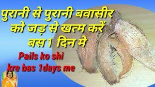 पुरानी से पुरानी बवासीर (Pails )को जड़ से खत्म करें बस 1 दिन मे इस असरदार नुस्खे से /bawaseer