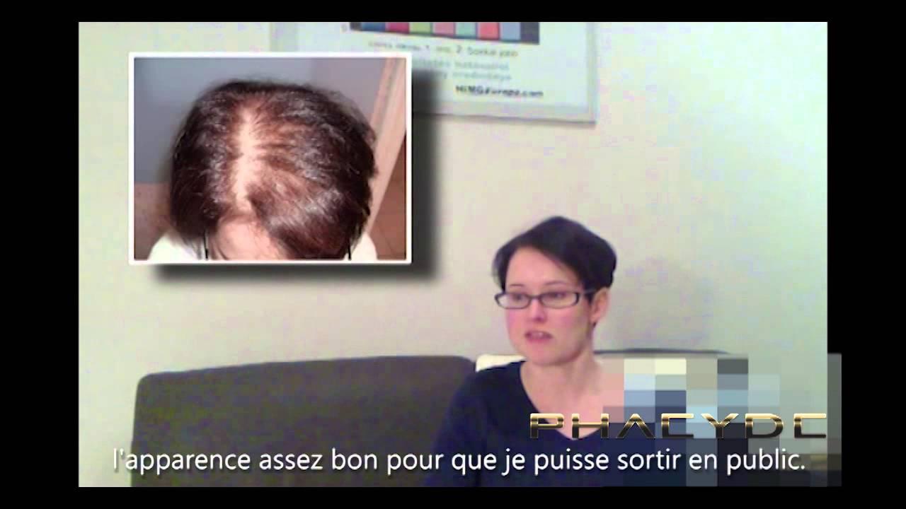 implantation de cheuveux greffe de cheveux pour les femmes phaeyde clinique youtube. Black Bedroom Furniture Sets. Home Design Ideas