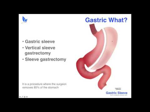 Gastric Sleeve Surgery by Dr  Guillermo Alvarez | Webinar | Weight Loss