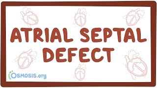 Download lagu Atrial Septal Defect Explained MP3