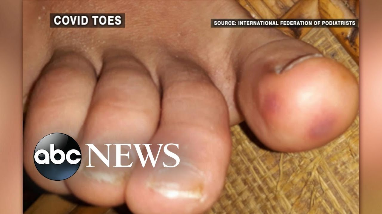 Doctors warn of mystery coronavirus symptom called 'COVID toes'