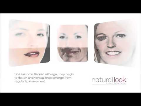 Natural Look Lip Injections
