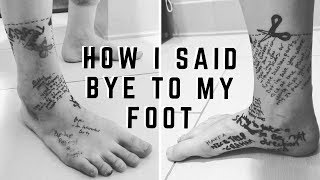 come-with-me-on-a-goodbye-tour-to-my-leg-before-amputation-how-i-said-bye-to-my-foot-cc