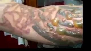 Kulit melepuh karena membuat tato