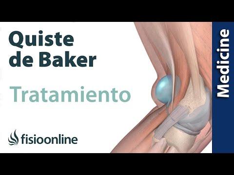 Cómo tratar el quiste de Baker - Guía para pacientes