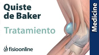 La de después posterior dolor la rodilla la día pierna parte del en de