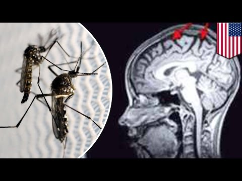 Zika virus may damage adult brain cells, causing long term memory loss like Alzheimer's TomoNews
