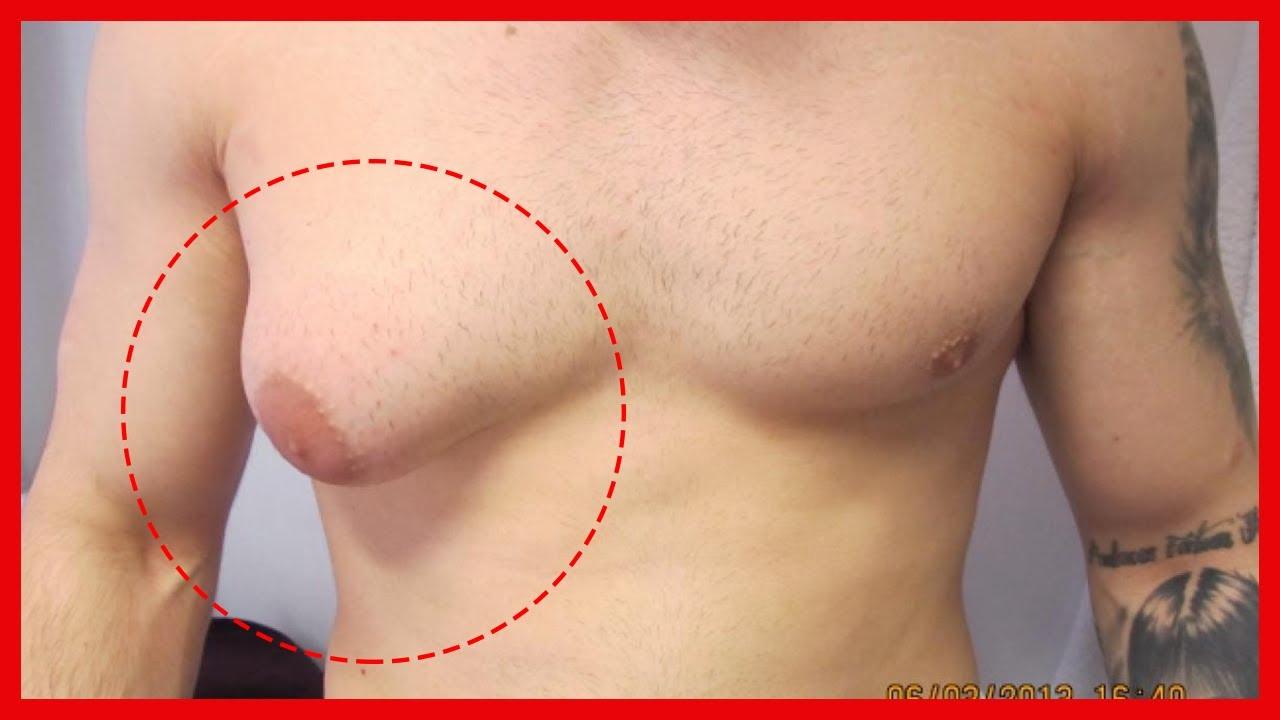 Download Brustästhetik bei Männern (Gynäkomastie)