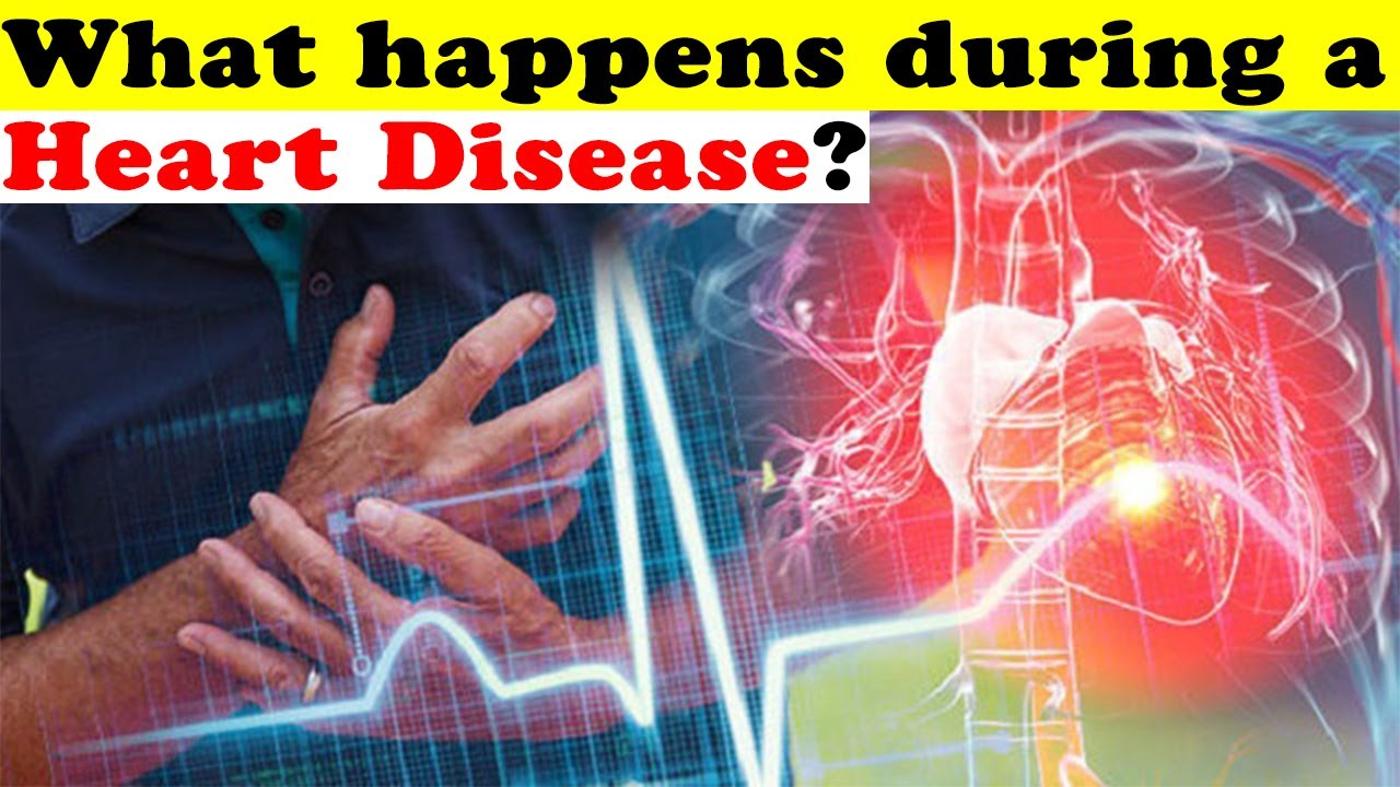 Heart Disease: Types, Causes, and Treatments | HealthCare.