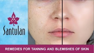 Download Video Beauty and Health Tips - 02 - Remedies for tanning and blemishes of the skin MP3 3GP MP4