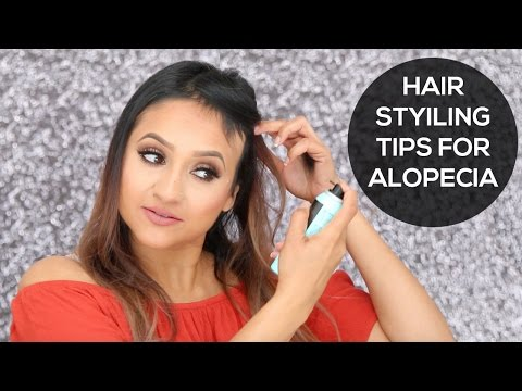 Hair Styling tips for Alopecia
