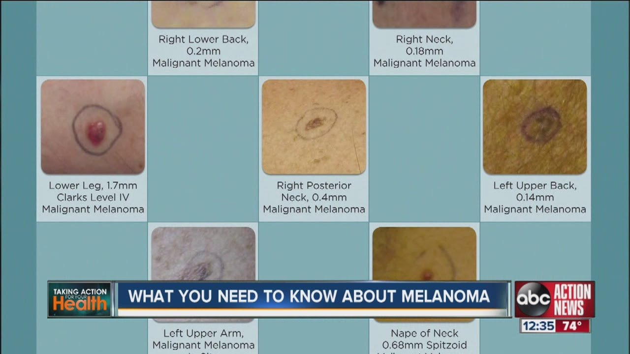 melanoma risk Women, however, do not have an increased risk in this large patient population given the widespread use of aspirin and the potential clinical impact of the link to melanoma, patients and health.
