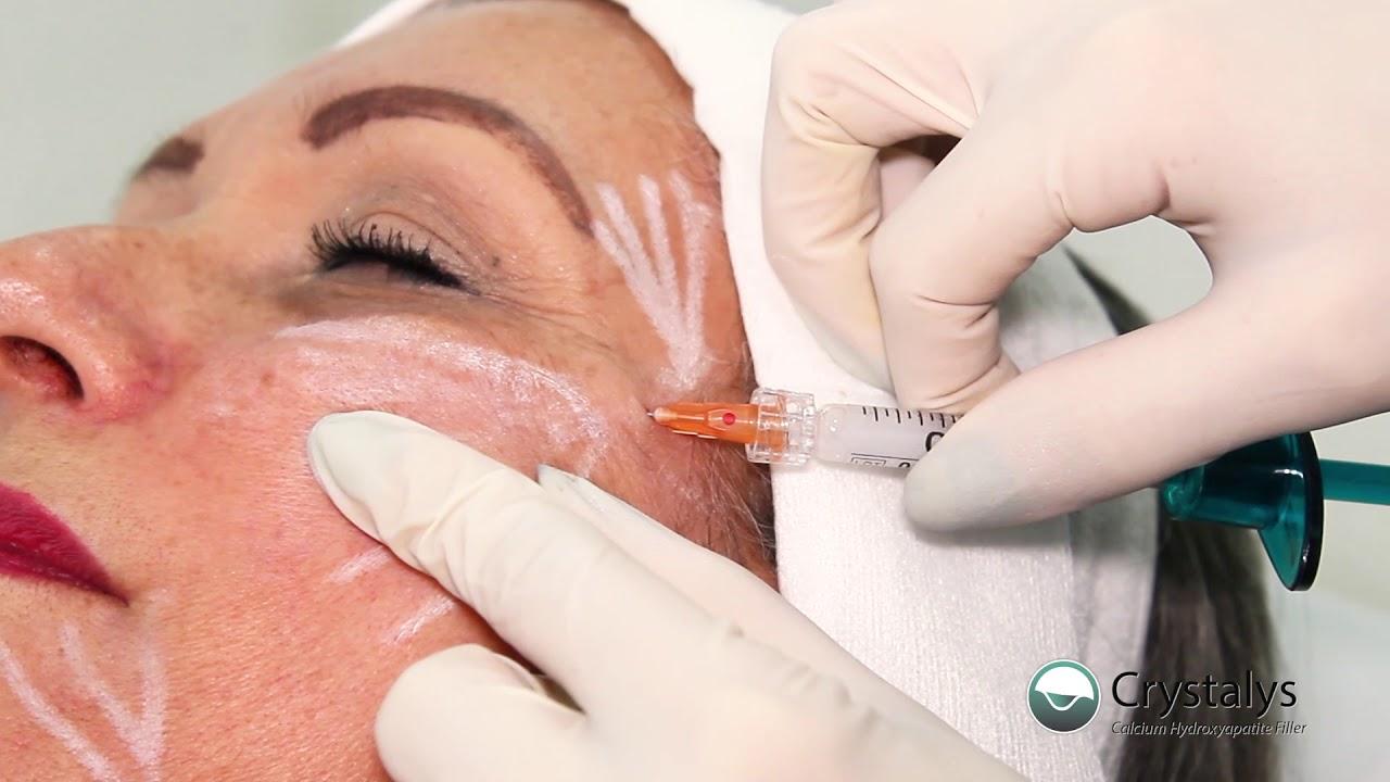 tube bioestimulacion facial You