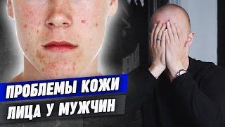 Мужской уход за лицом Проблемы с кожей лица у мужчин Как определить тип кожи лица