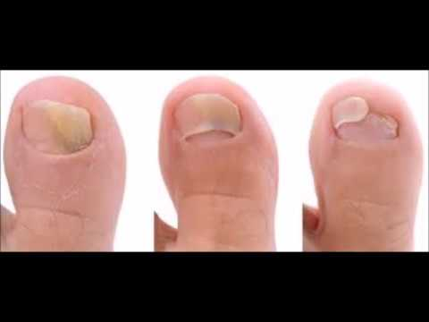 How Long Does It Take For Apple Cider Vinegar To Cure Toenail Fungus