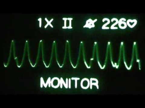 Ventricular Fibrillation Ekg Download Ecg Ekg Ventricular