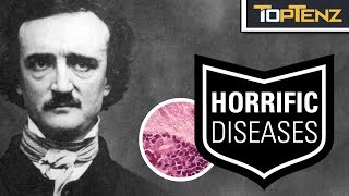 Top 10 Famous HISTORIC FIGURES Who Suffered Horrifying DISEASES