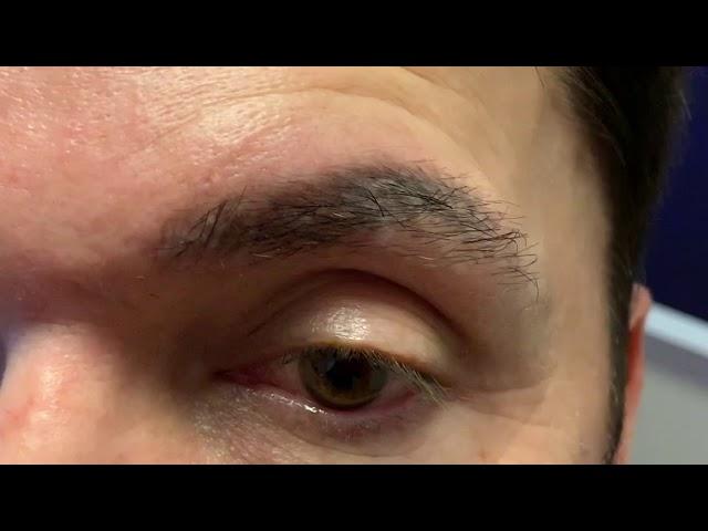 Dallas Corrective Eyebrow Transplant
