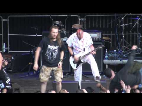 GENERAL SURGERY Live At OBSCENE EXTREME 2015 HD