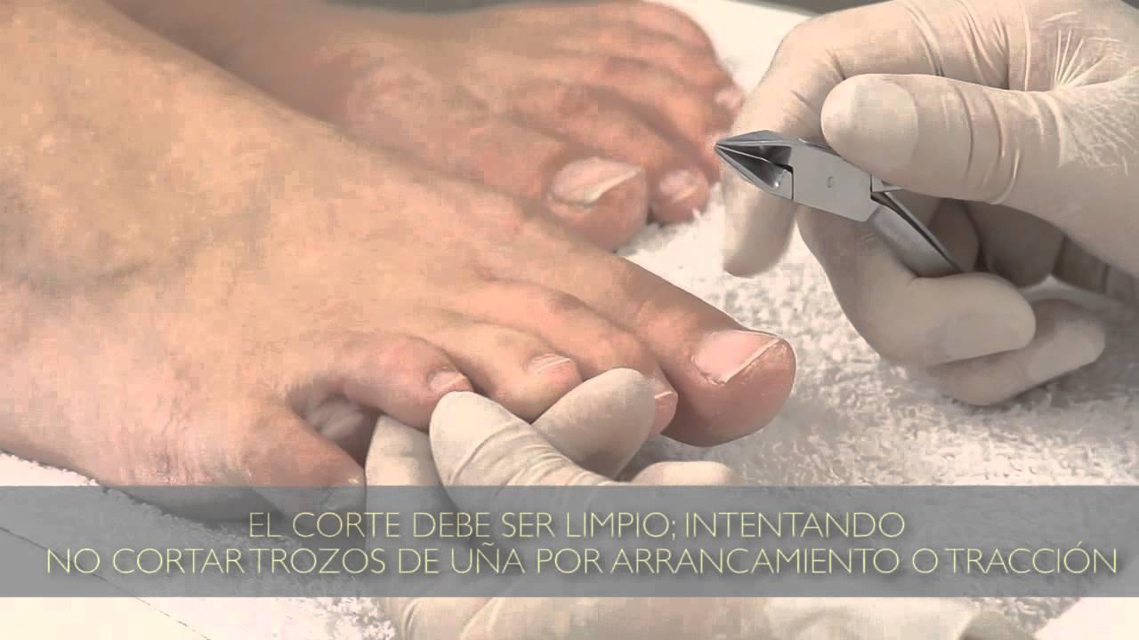 Cómo cortar las uñas de los pies correctamente : Tips para pedicuría ...
