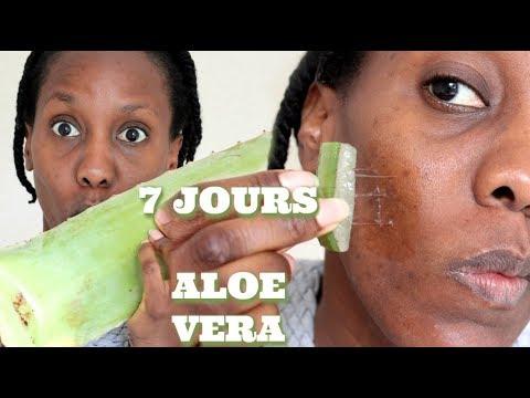 LES EFFETS DE L' ALOE VERA SUR MA PEAU PENDANT 7 J !!