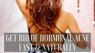 HOW I GOT RID OF HORMONAL ACNE FAST AND NATURALLY | SKINCARE