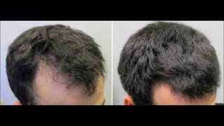 How To Regrow Lost Hair In 15 Minutes A Day - How To Reduce The Hair Loss