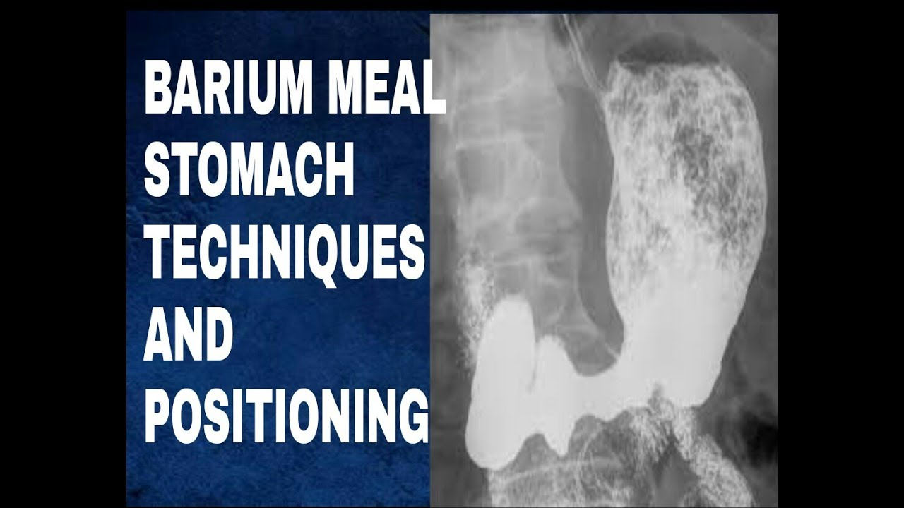 Barium meal stomach and duodenum digestive system d anatomy and barium meal stomach and duodenum digestive system d anatomy and physiology part 33 ccuart Choice Image