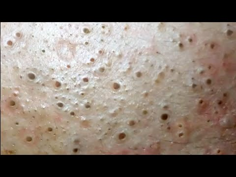 Multiply Blackheads on Forehead - Blackheads Removal