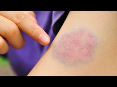 Как избавиться от синяка на руке
