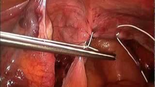 Uterine Suspension.mov