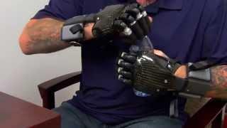 Scott Ackermann - Partial Finger Prosthetic Solutions at Hanger Clinic thumbnail