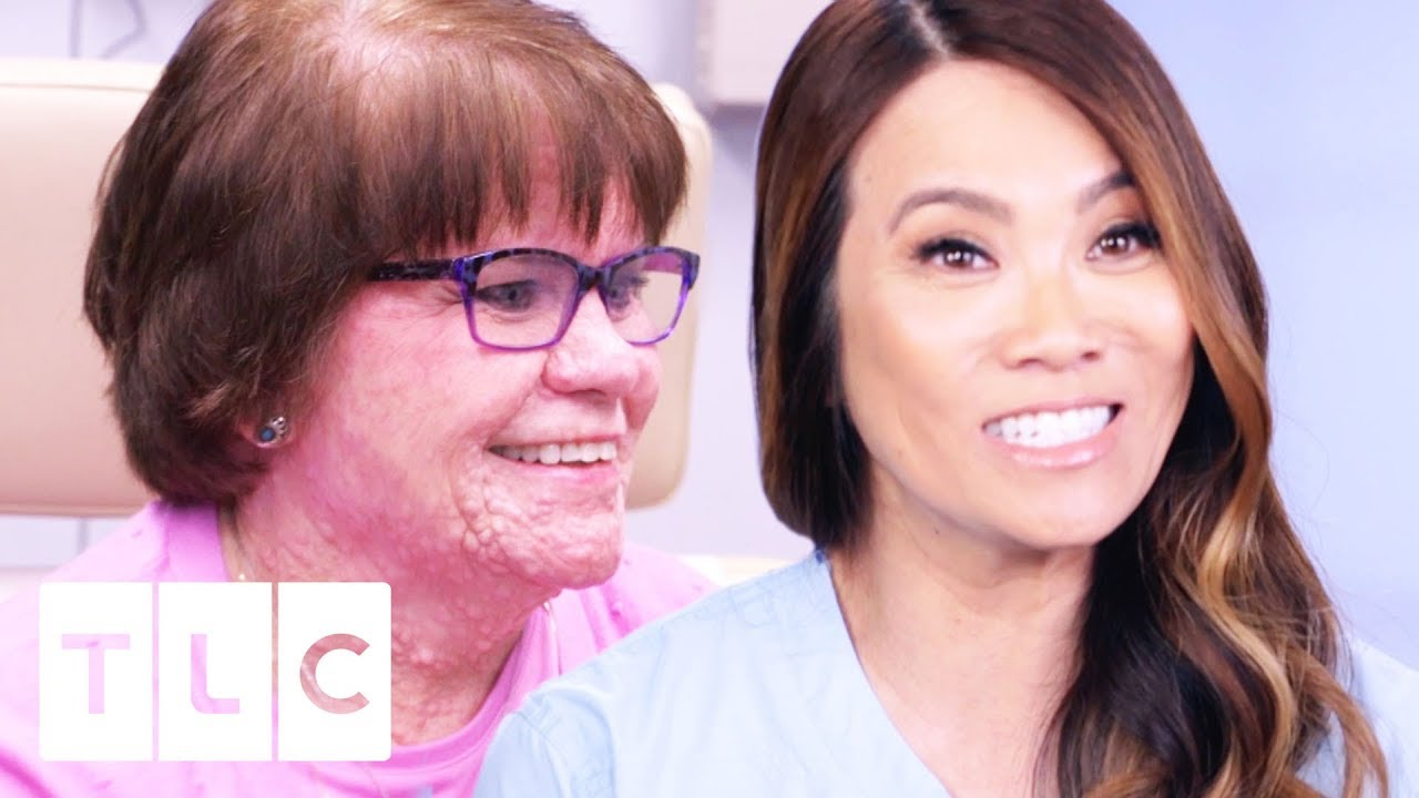 Dr Lee Aids Patient With An Incurable Skin Condition Dr Pimple Popper
