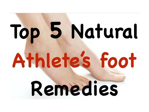 ✔ Top 5 Natural remedies for Athlete's Foot, get rid of Athlete's Foot with these simple remedies