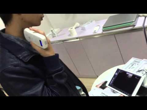 UProbe-2 wireless probe ultrasound, working on IPAD / IPHONE