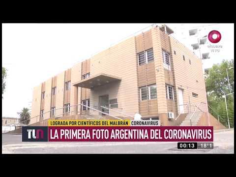 Logran la primera foto argentina del coronavirus