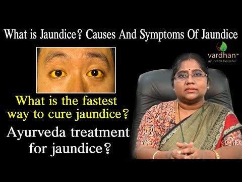 what-is-jaundice?what-are-the-causes-and-prevention-for-jaundice?dr-madhuri|vardhanayurveda