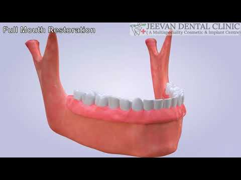 full-mouth-rehabilitation-,-replacement-of-missing-teeth-with-dental-implant-,-jeevan-dental-clinic