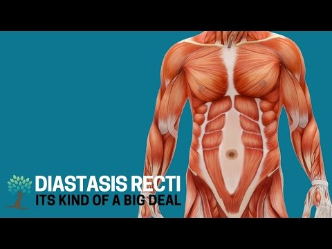 Here's Why Diastasis Recti is a Big Deal Diastasis Ed #1