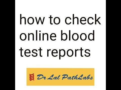 dr lal path lab reports online With an easy and free of cost home pickup service, dr lal pathlabs has now made it easy for you to book a test and get it done within the comfort of your home and get reports online dr lal pathlabs is accredited by.
