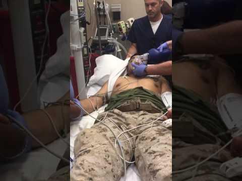 Shoulder dislocated! Watch as a doctor fixes a Marine's shoulder after a violent parachute landing.