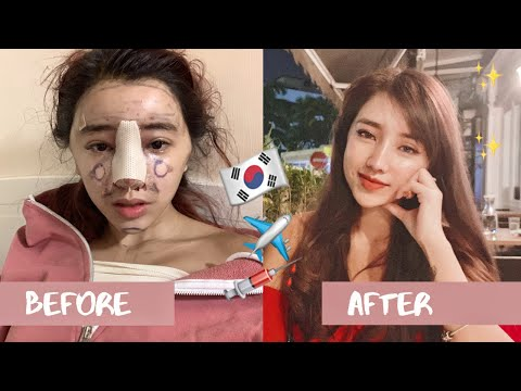 MY PLASTIC SURGERY IN KOREA PART 1 | CINDERELLA CLINIC | BREAST, NOSE AND FAT GRAFTING SURGERY?!