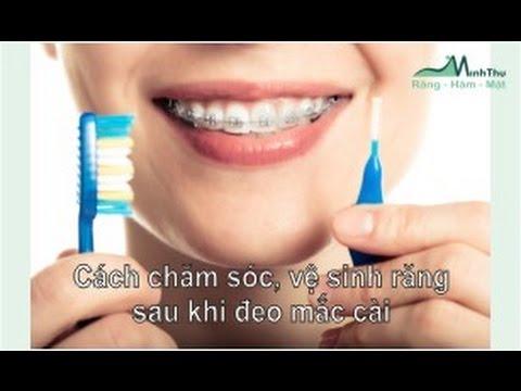 Nắn chỉnh răng- niềng răng- Cách chăm sóc, vệ sinh răng sau khi gắn mắc cài